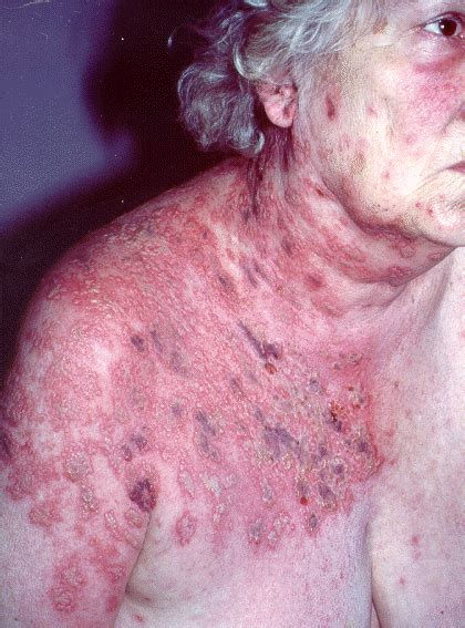Shingles (Herpes Zoster) - Prevent, Causes, and Definition