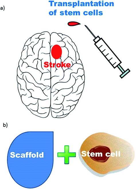 Stem cell therapies for ischemic stroke: current animal