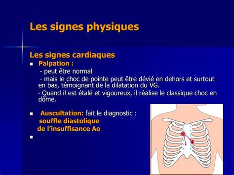 PPT - L'INSUFFISANCE AORTIQUE PowerPoint Presentation - ID