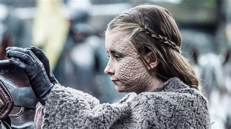 Game of Thrones: What is Greyscale? Who are the Stone Men