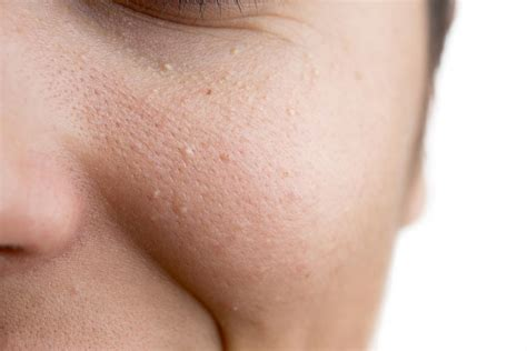 How to get rid of milia: Treatment, prevention, and causes